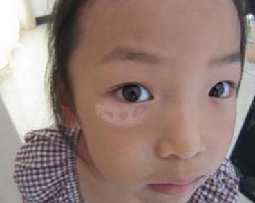 儿童白癜风常见病因有哪些