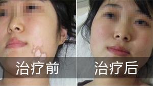 白癜风专科医院告诉你怎样治疗脸部白癜风会比较好