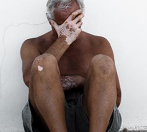 老年白癜风怎么进行护理